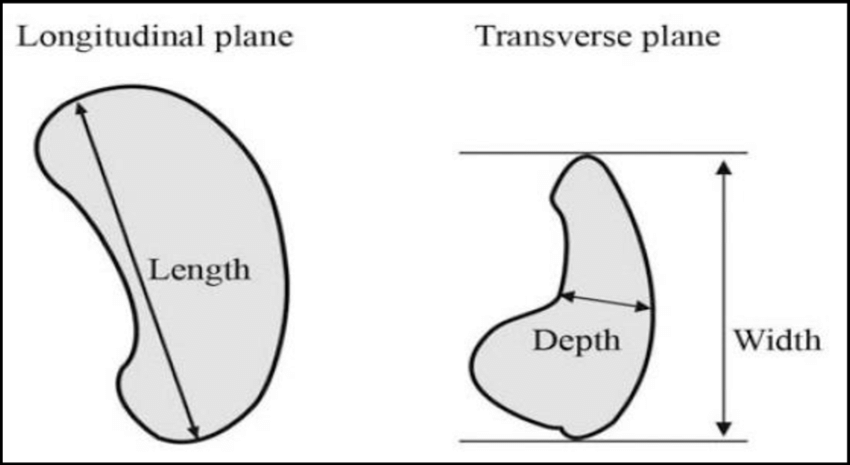 Schematic diagram showing the method for measuring splenic