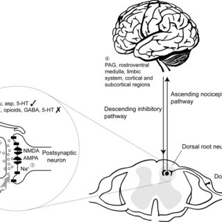 Central mechanisms of Mirror-image pain. 3. Supraspinal