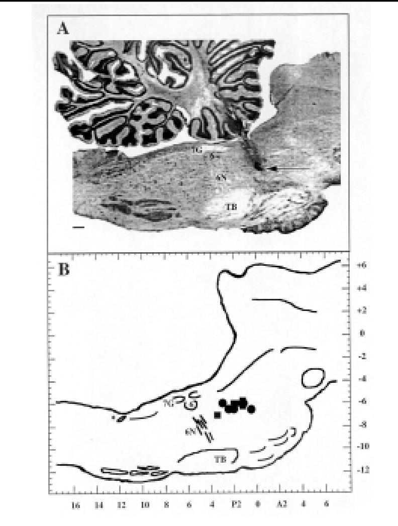 reticular formation diagram 7 way trailer plug wiring chevrolet histological verification of medial pontine mprf download scientific