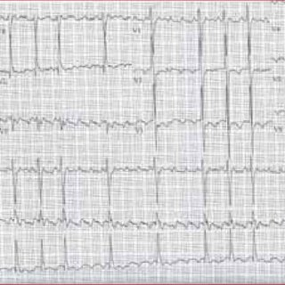 (PDF) Treatment for atrial flutter in a patient with heart