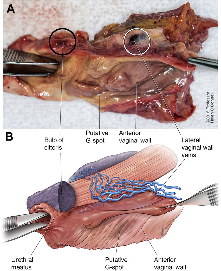 medium resolution of panel a shows a photograph of the anterior vaginal wall and urethra to download scientific diagram