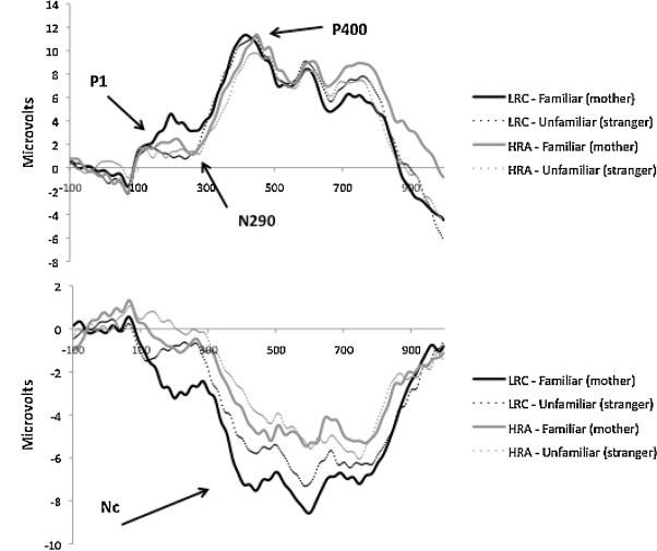 P1/N290/P400 (top) and Nc (bottom) at 6 months. Stimulus
