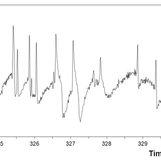 Typical current density time records of type 304 stainless