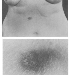 cutaneous nodule in the epigastrium  [ 850 x 1165 Pixel ]