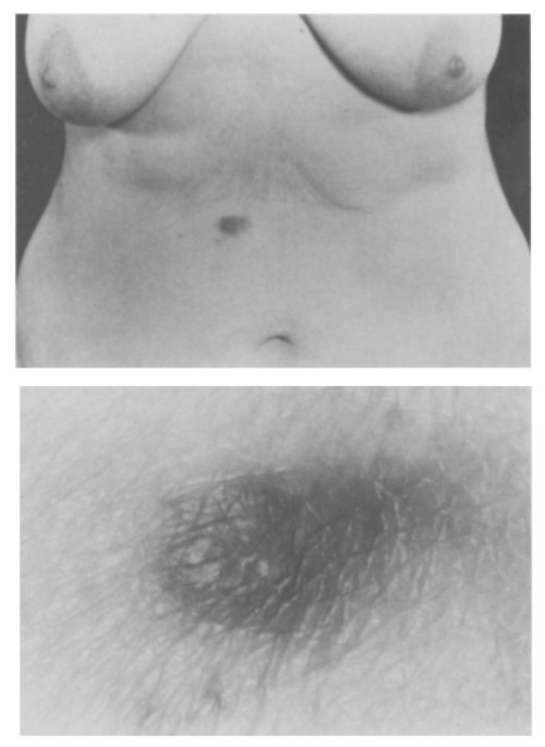 small resolution of cutaneous nodule in the epigastrium
