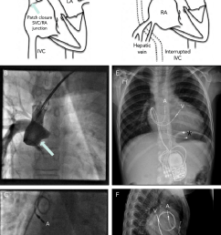 pacing solutions in patients with hemi fontan circulation or similar [ 745 x 1210 Pixel ]
