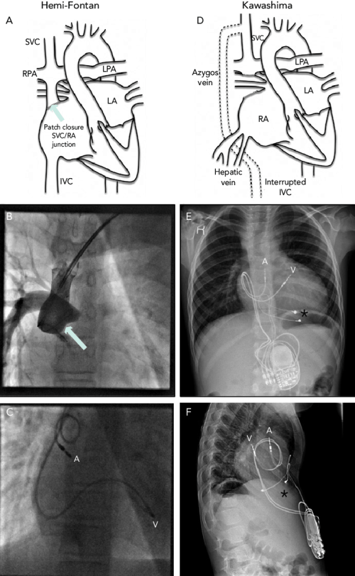 small resolution of pacing solutions in patients with hemi fontan circulation or similar