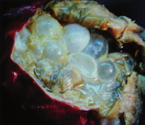 Echinococcus granulosus: surgically removed liver cyst ...