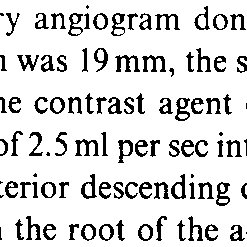 Transvenous coronary angiogram recorded in an anesthetized