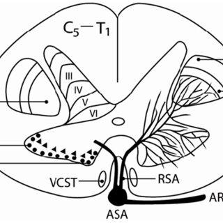 Schematic diagram ilustrating the pyramidal decussation