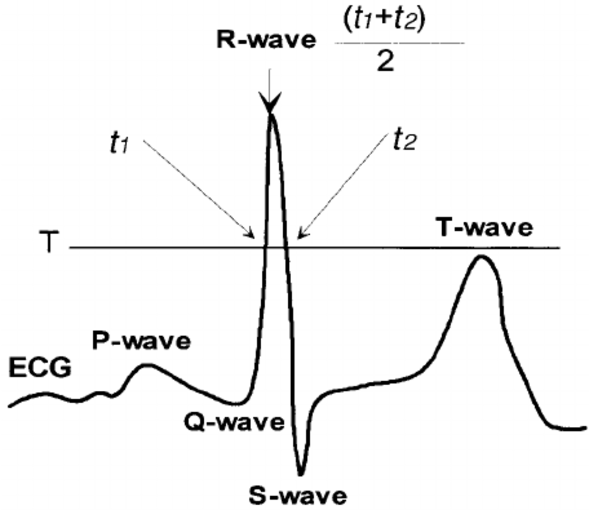 Illustration of R-wave detection algorithm. t1 and t2 are