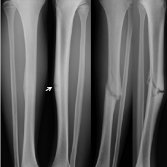 Diagram Of Tibia Stress Fracture Pioneer Deh 1100mp Wiring Injury Radiographs A Anteroposterior And B Lateral The Right Show Clearly Transverse Lucency Arrow Dreaded Black Line In Midtibial