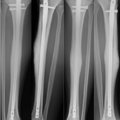 Diagram Of Tibia Stress Fracture Sony Double Din Head Unit Wiring Twelve Month Post Second Surgery Radiographs A Anteroposterior And B Lateral The Right Show New Old Healed Tibial C D