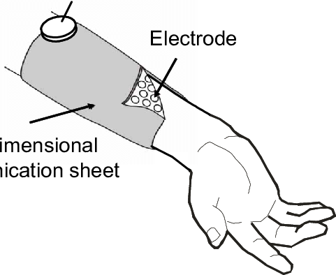 Schematic diagram of the wristband-shaped electrode array