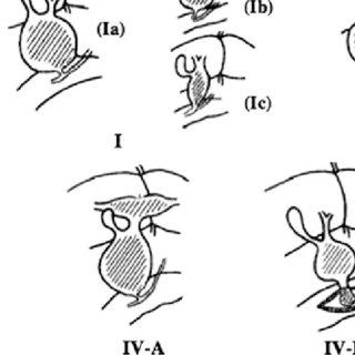 The Todani classification of congenital biliary dilatation