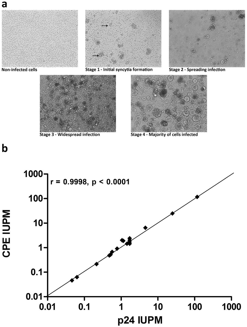 hight resolution of supt1 ccr5 cells induce syncytia formation upon hiv infection a during culture