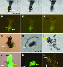 stereoscan images of air formed salivary sheaths of glassy winged sharpshooters after feeding for [ 850 x 1034 Pixel ]