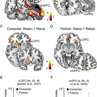 Results of the psychophysiological interaction (PPI
