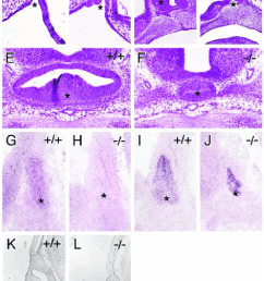 lack of pitx2 affects pituitary gland development a b midline sagittal comparison [ 751 x 1141 Pixel ]
