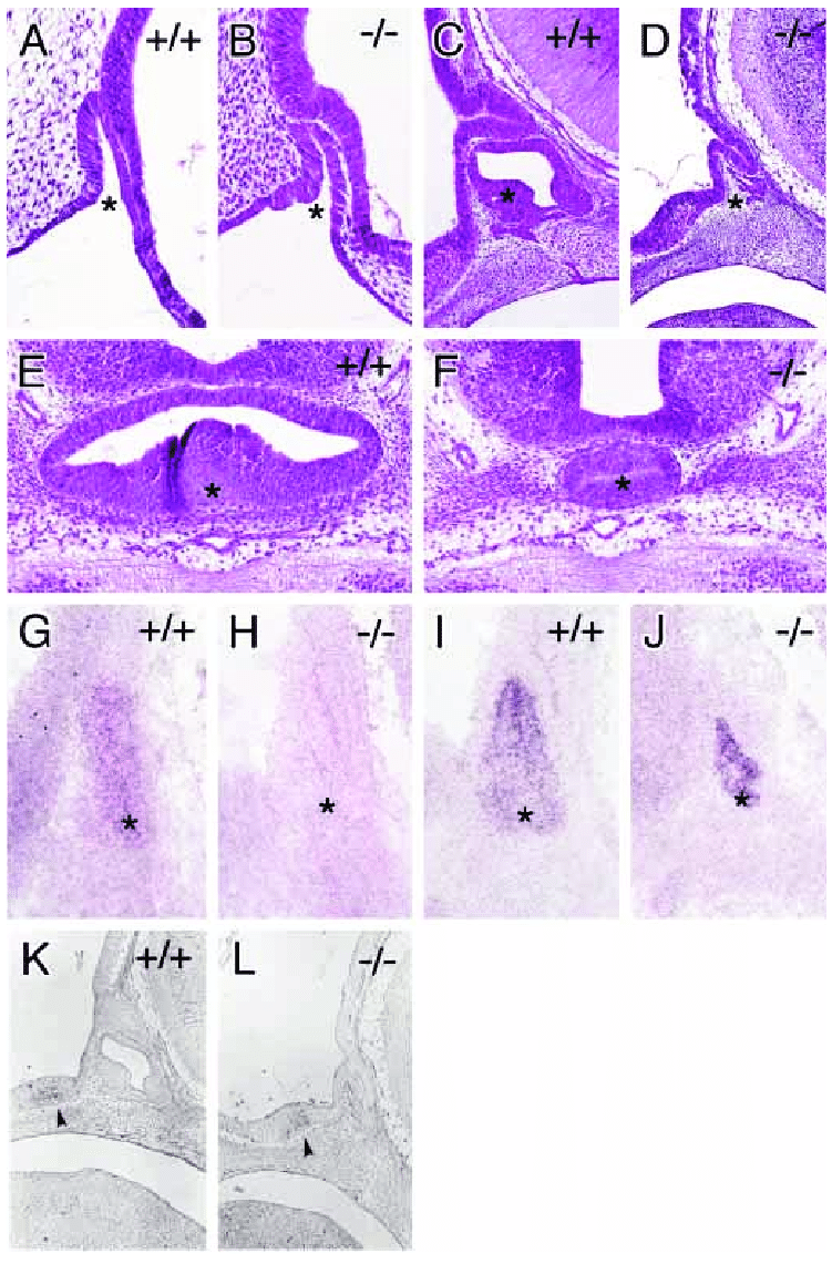 hight resolution of lack of pitx2 affects pituitary gland development a b midline sagittal comparison