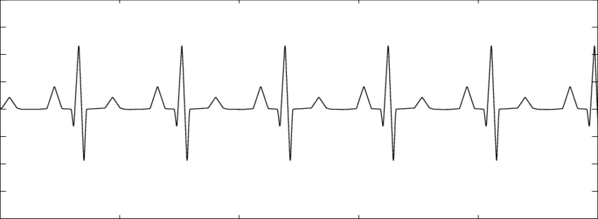 weak heart diagram