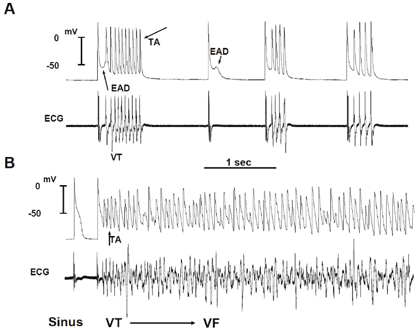 Simultaneous microelectrode and ECG recordings at the