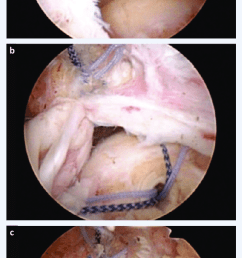 arthroscopic massive rotator cuff repair a placement of the two transtendon sutures b [ 642 x 1451 Pixel ]