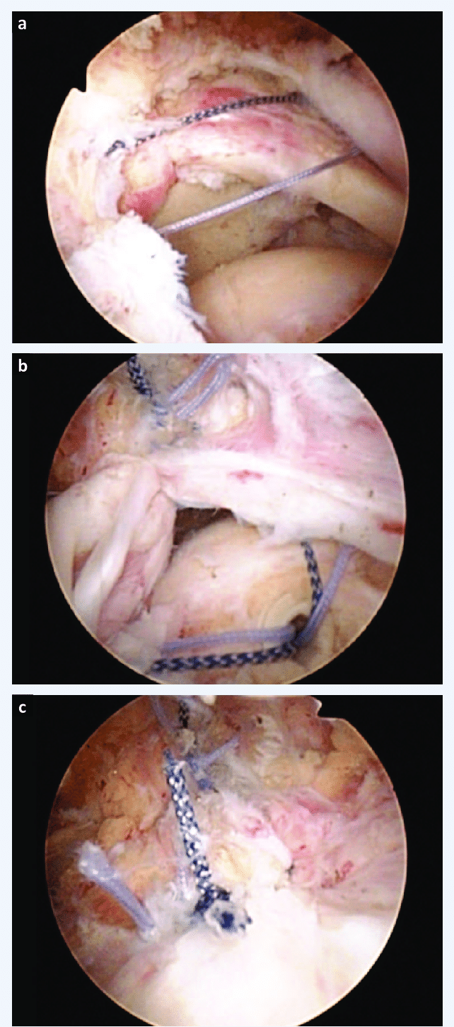 medium resolution of arthroscopic massive rotator cuff repair a placement of the two transtendon sutures b