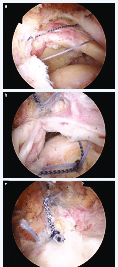 small resolution of arthroscopic massive rotator cuff repair a placement of the two transtendon sutures b