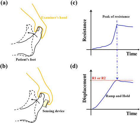 Rationales of spasticity measurement for modified Tardieu