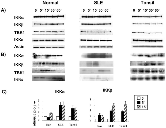 Aberrant CD40-induced NF-κB activation in human lupus B