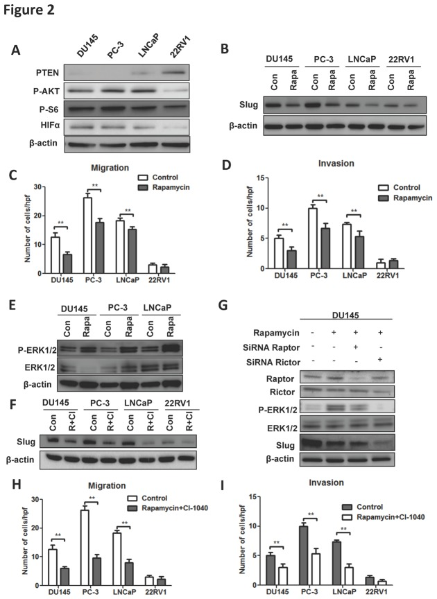 Basal levels of PTEN, phosphorylated Akt and S6, and HIF1α
