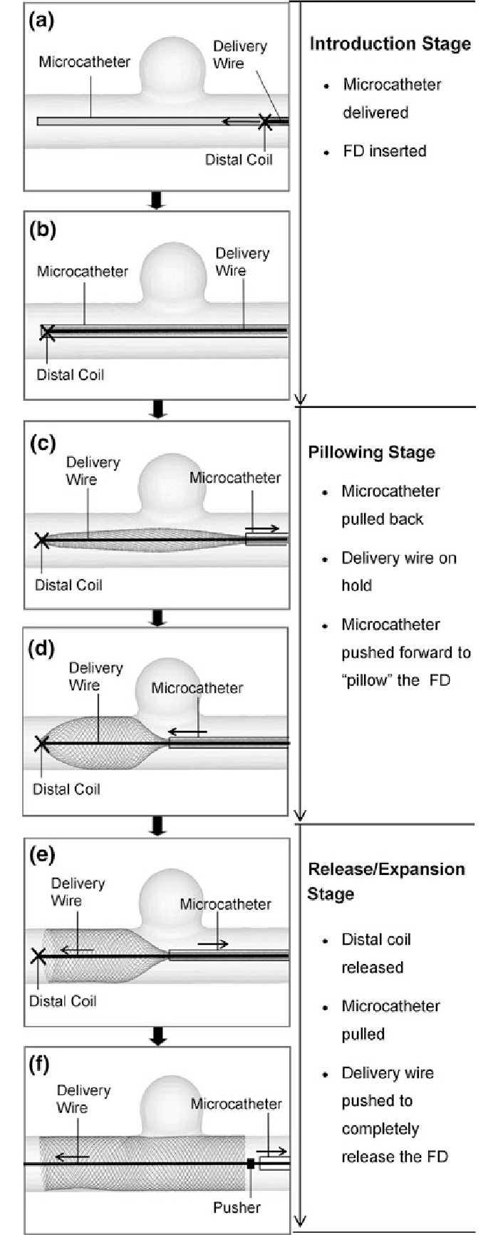 Procedure of FD deployment using the push-pull technique