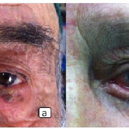 (PDF) Age-Related Eyelid Diseases