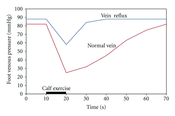 veins in the foot diagram minn kota wiring 24 volt vein online showing venous pressure during exercise standing dorsal