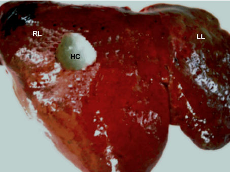 Simple Diagram Of Human Lungs A Hydatid Cyst Located Near The Right Lobe Of A Sheep