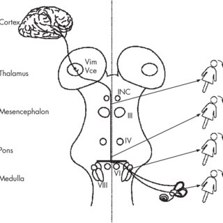 Hypothetical explanation of body lateropulsion due to a