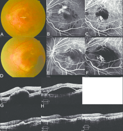 fundus photography fluorescein angiography fa indocyanine green download scientific diagram [ 850 x 942 Pixel ]
