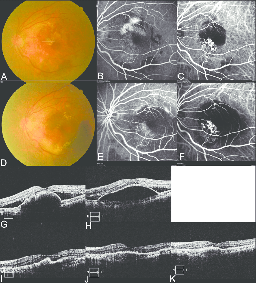 hight resolution of fundus photography fluorescein angiography fa indocyanine green download scientific diagram