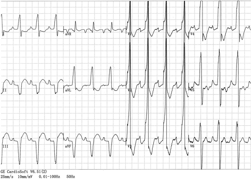 ECG showing complete right bundle branch block with a QRS