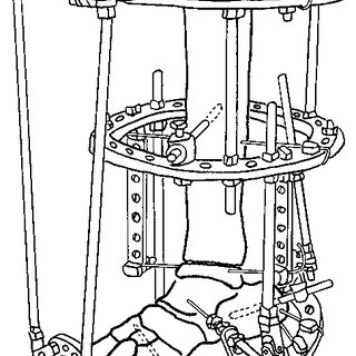 (PDF) The treatment of recurrent arthrogrypotic club foot