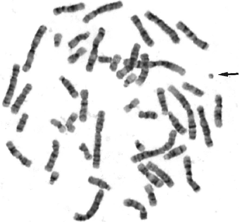 Representative GTG-banded metaphase spread from the