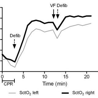 Cerebral tissue oxygen saturation (SctO2 (%)) (monitored