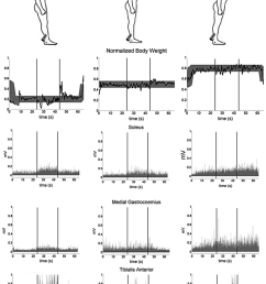normalized body weight bw distribution and emg soleus medial rh researchgate net jackson wiring diagrams jackson dinky wiring diagram [ 850 x 1209 Pixel ]
