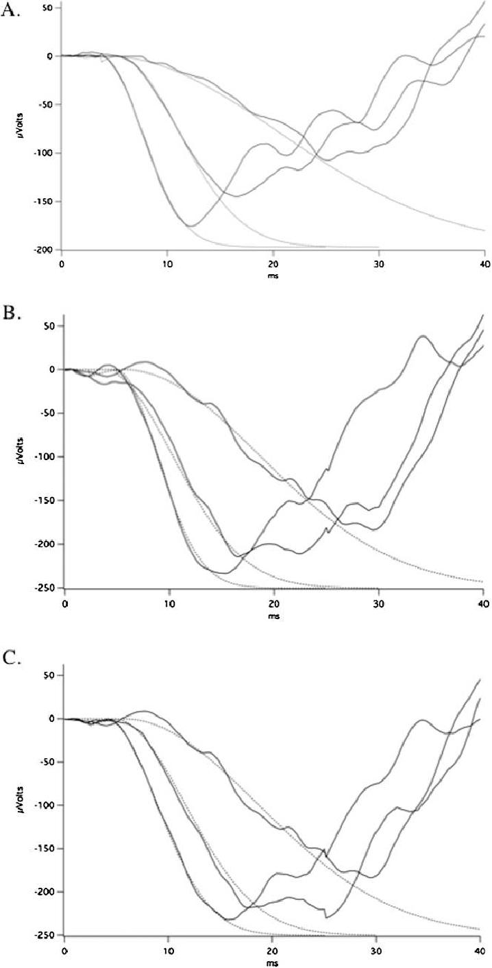 medium resolution of fitting of rod isolated erg a wave leading edge representative erg recordings
