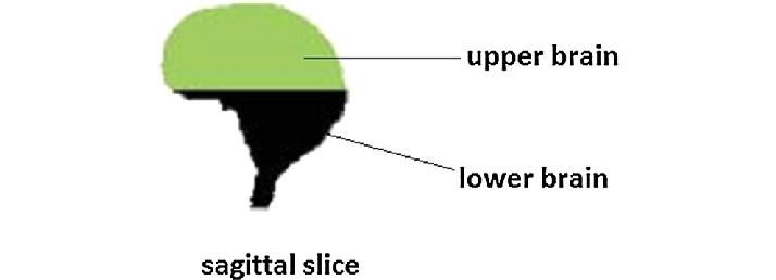 lower brain diagram kenwood kdc 138 wiring 2 definition of the regions upper and in sagittal slice