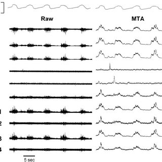 (PDF) Heterogeneous activity of the human genioglossus