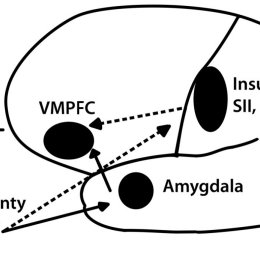 (PDF) A Neuropsychological Approach to Understanding Risk