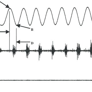 (PDF) Electromyographic Response to Manual Passive Stretch