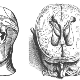 Homer Simpson's brain seen with MRI/X ray. Image